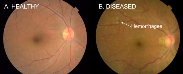 Eye Disease_1.png